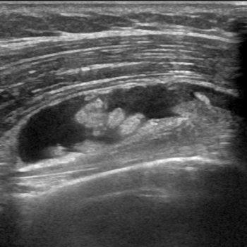 overvulling van de bursa ter plaatse van de lange bicepspees
