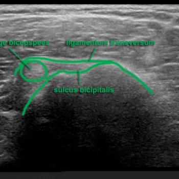 medialisatie lange bicepspees