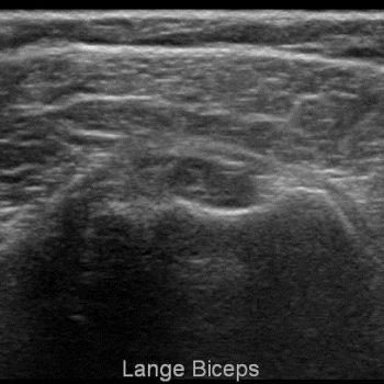 lege sulcus bicipitalis - ruptuur lange bicepspees