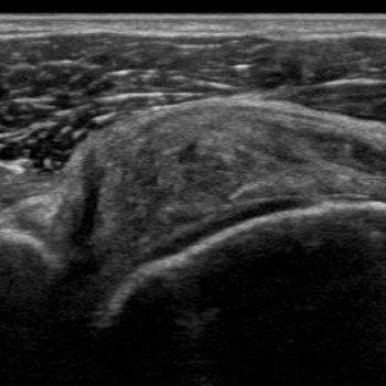 tendinitis supraspinatuspees