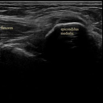 epicondylitis medialis