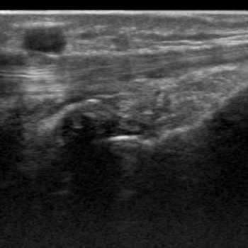 ganglion extensorpees
