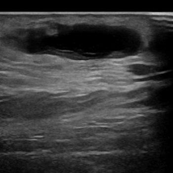 hematoom in het subcutane vet
