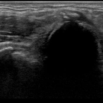 kalk in de insertie van de flexoren op de mediale epicondyl