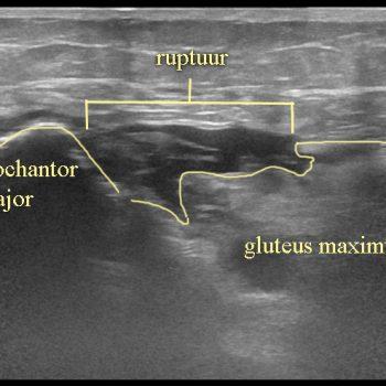 ruptuur van de gluteus maximus insertie op de trochanter
